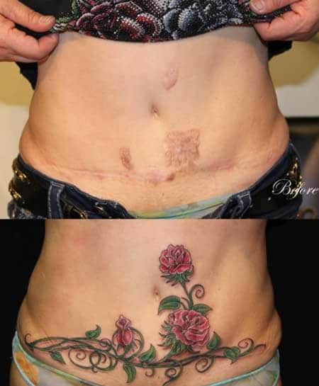 mẫu tattoo hình hông hoa che sẹo lồi ở bụng