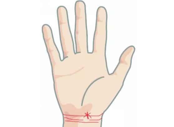 Cổ tay có vân hình ngôi sao